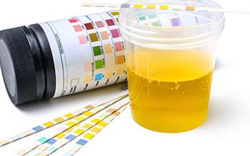 drug testing in urine